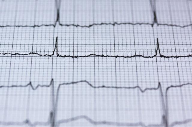 Co jest przyczyną wysokiego pulsu?